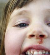 宝宝经常流鼻血怎么办?