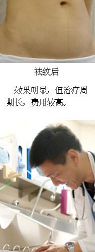 产后消除妊娠纹-激光治疗