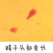 精子头部变长