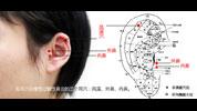 治鼻炎三穴位:风溪、外鼻、内鼻
