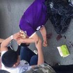 中乙球迷遭保安殴打流血